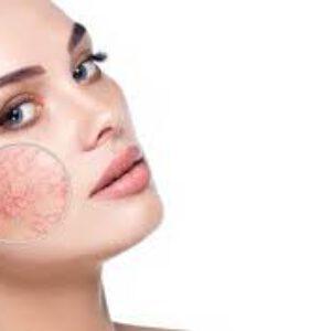 آموزش مراقبت از پوست حساس
