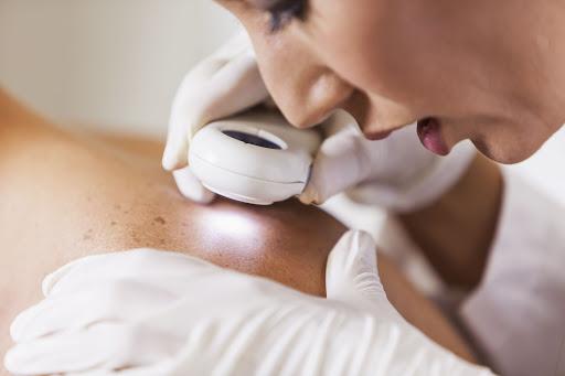 چه موقع به متخصص پوست مراجعه کنیم؟