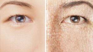 Read more about the article پوست خشک: نشانه های پوست خشک و روش های درمان