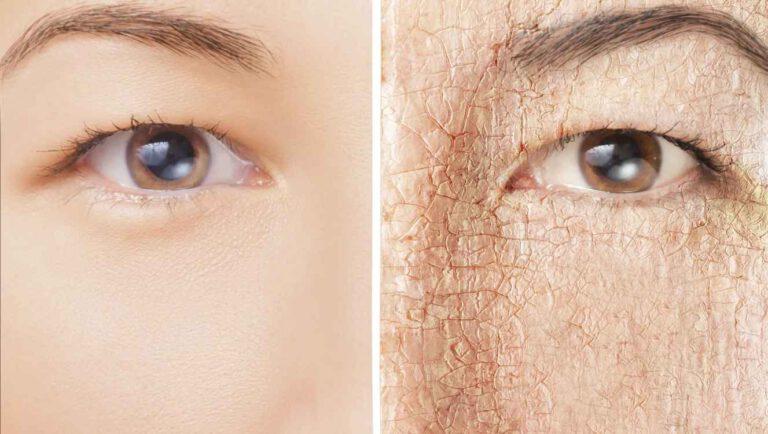 پوست خشک: نشانه های پوست خشک و روش های درمان