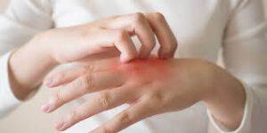 Read more about the article آموزش ساخت مرهم درمان خانگی اگزما