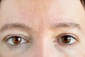 راهنمای مراقبت از پوست خشک